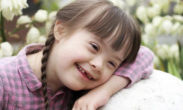 soñar con síndrome de down