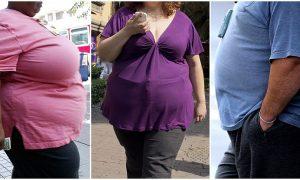 Soñar con Obesidad Mórbida